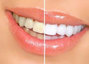 Teeth Whitening in Hollywood & Tamarac, FL